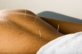 Acupuncture Pain